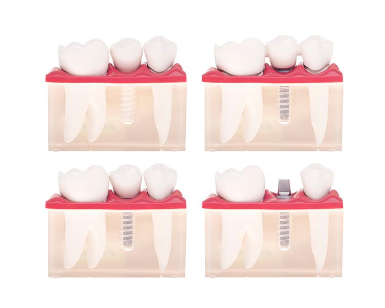 Implanty dentystyczne